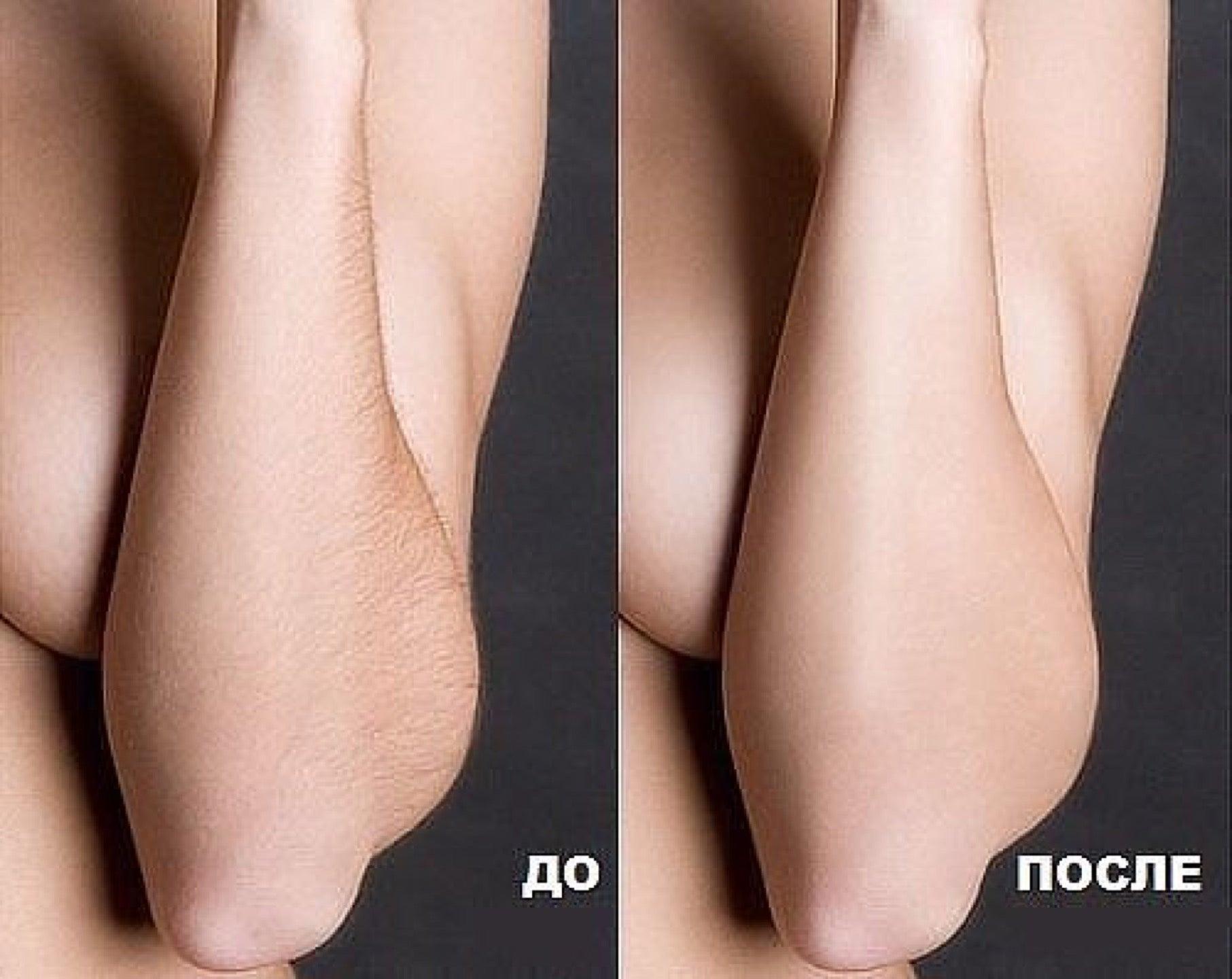 Чем осветлить волосы на ногах в домашних условиях